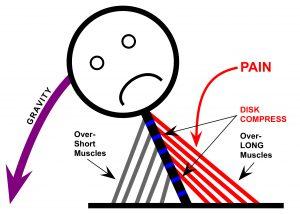 Muscle imbalances illustrated for mindful medical massage - structural bodywork